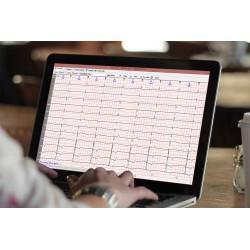 Analisador de Holter