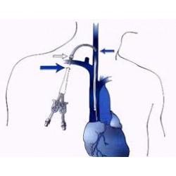 Cateteres para hemodiálise de longa duração